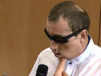 Face transplant patient thanks doctors in Poland