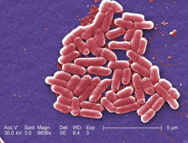 Mutant superbug in the US heralds start of the post-antibiotic era