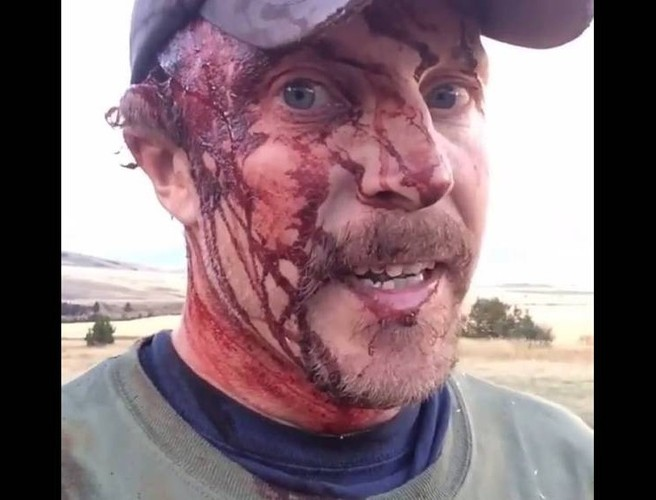 """Yeah, life sucks in bear country"" - Montana man survives grizzly attacks"