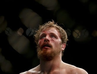 "Gunnar Nelson: Weight cutting has become ""ridiculous"""