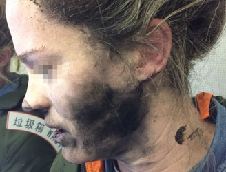 Woman's battery-operated headphones catch fire mid-flight