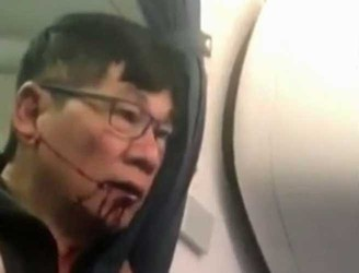 United Airlines passenger dragged off plane speaks out