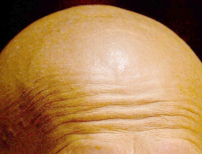 Scientists stumble upon potential new cure for baldness