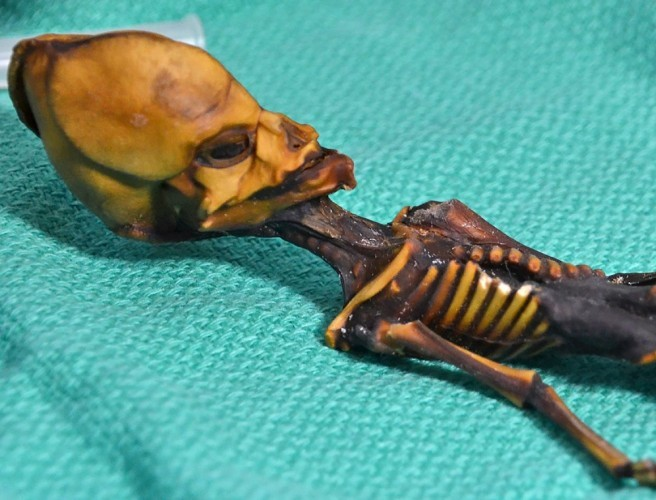 'Alien' mummy found to be human with rare gene mutations