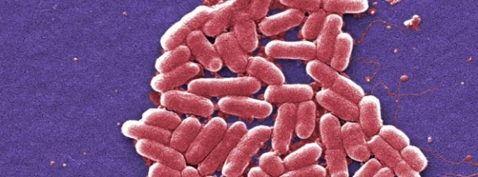 HSE warns public following big increase in E.coli infections