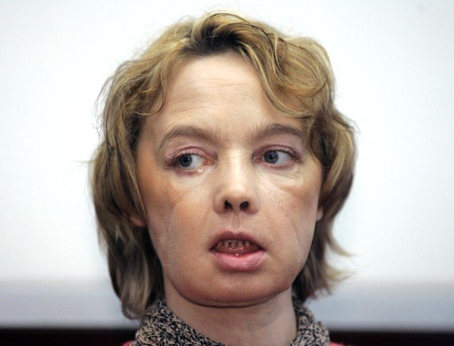 Frenchwoman who received world's 1st face transplant dies class=